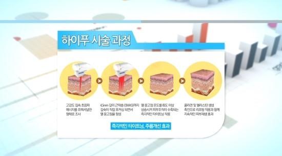 쿠키건강TV 유캔비성형외과피부과 이선영원장님의 이중턱치료!